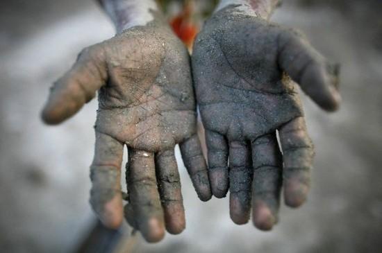 어린이 노동자 손.jpg