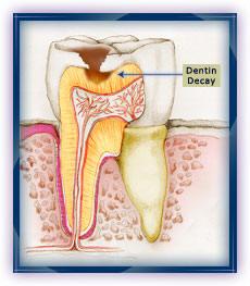 caries - dentin.jpg