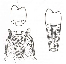 basket implant.jpg