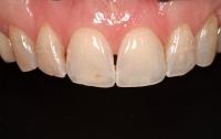 [의학]치과에서 설명하고 싶었던 것들2 - 잇몸 치료와 치료계획