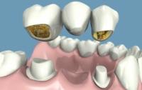[의학]치과에서 설명하고 싶었던 것들(4-1)보철치료 - 크라운과 브릿지